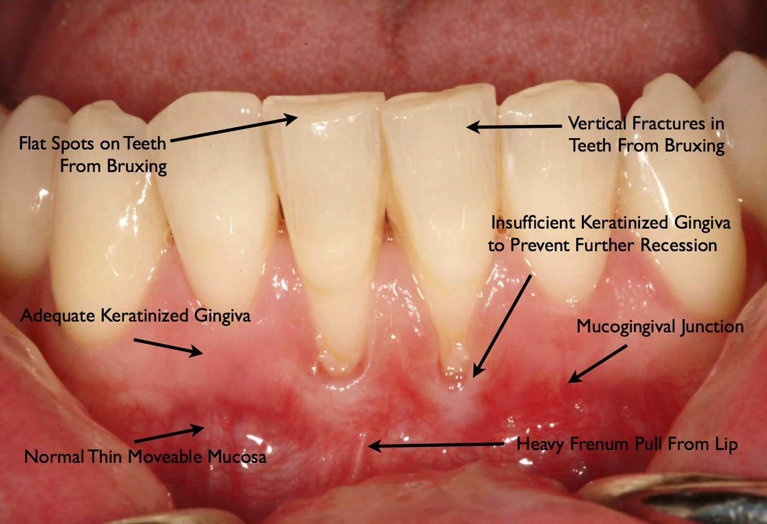 Information About Quot Davis Wiki Gingiva Jpg Quot On Dental